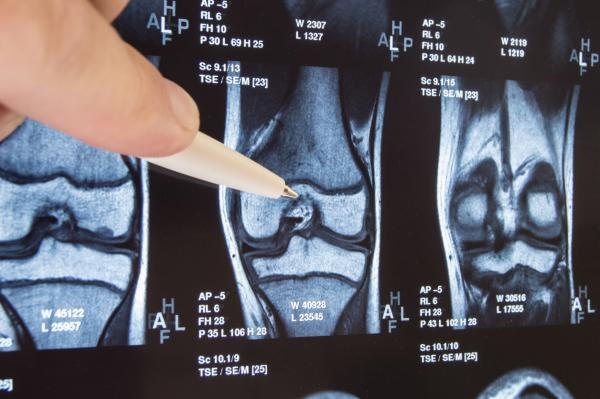 Lower extremity joint replacement